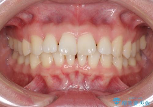 インビザライン で治す  出っ歯の治療の症例 治療前
