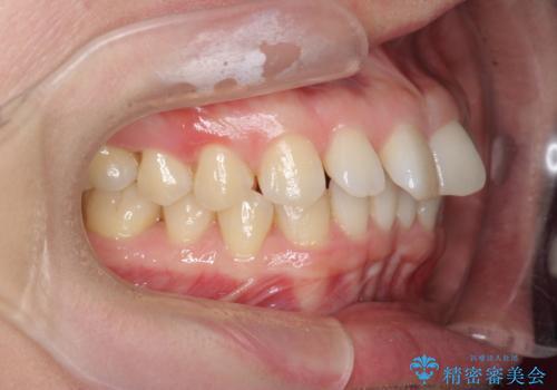 インビザライン で治す  出っ歯の治療の治療前