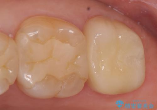 オールセラミッククラウン 欠けた歯の治療の症例 治療後