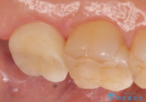 オールセラミッククラウン 欠けた歯の治療の治療後