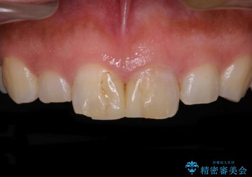 長さの気になる変色した前歯をオールセラミッククラウンにの症例 治療前