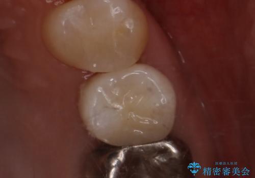 笑うとキラリと光る銀歯を何とかしたい:適合の良いセラミックで長持ちする歯にの治療後