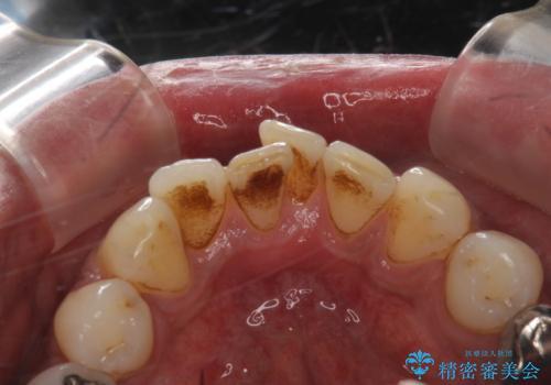 タバコによるヤニをPMTC(歯科医院での専門的クリーニング)で除去。の治療前