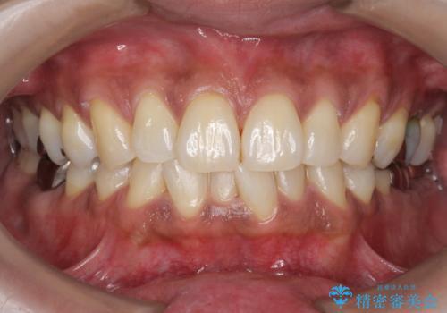タバコによるヤニをPMTC(歯科医院での専門的クリーニング)で除去。の治療後