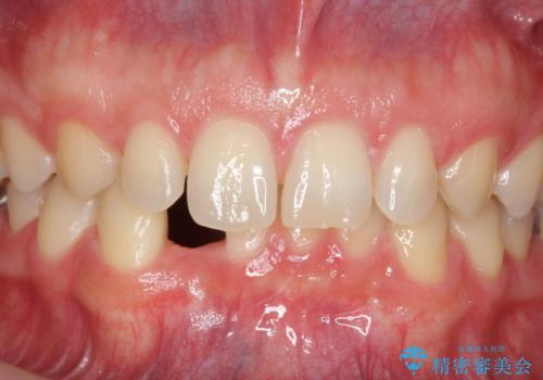 下の前歯のインプラント 生まれつき歯が少ないの治療前