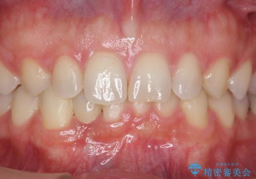 下の前歯のインプラント 生まれつき歯が少ないの治療後