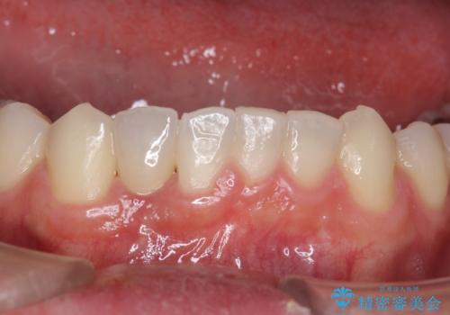 下の前歯のインプラント 生まれつき歯が少ないの症例 治療後