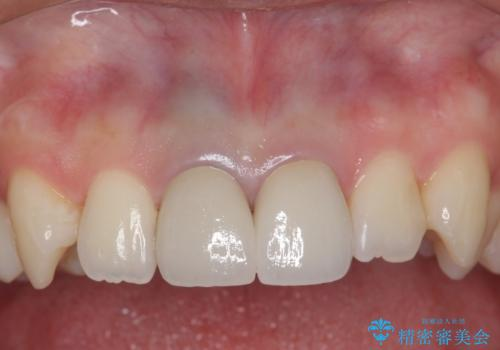 神経をとった前歯が変色してきたの治療後