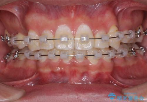 前歯の叢生を解消 ワイヤー装置での抜歯矯正の治療中