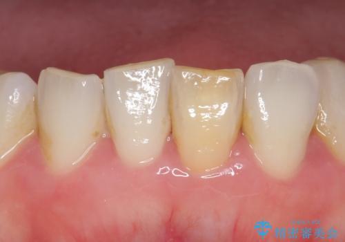 オールセラミッククラウン 変色した前歯をセラミックで白くの症例 治療前