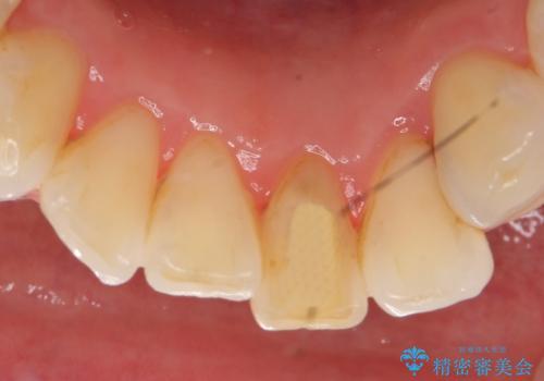 オールセラミッククラウン 変色した前歯をセラミックで白くの治療前