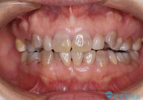 矯正の後戻りと変色歯を治したい 総合歯科診療の症例 治療前