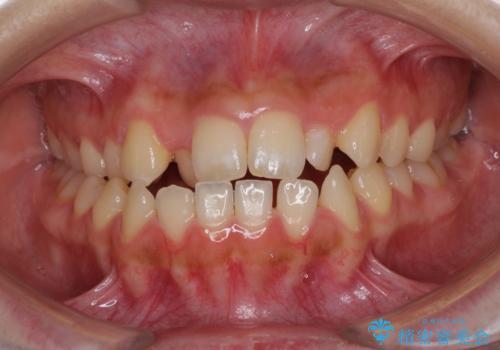 外科矯正は受けたくない 上顎骨拡大による妥協的な受け口治療の症例 治療前