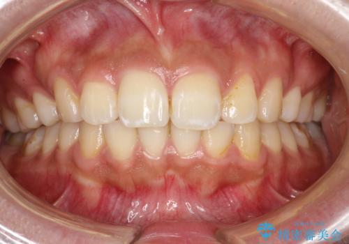 歯科医院で初めてのクリーニング PMTC30分コースの治療前
