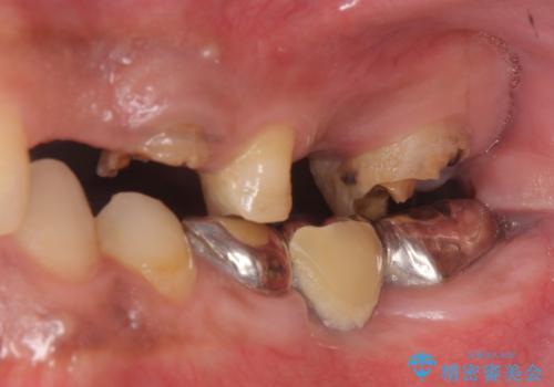 オールセラミッククラウン ブリッジによる欠損歯の補綴の治療前