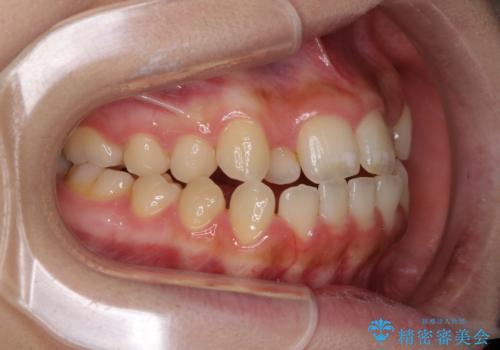 外科矯正は受けたくない 上顎骨拡大による妥協的な受け口治療の治療前