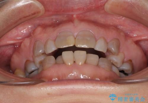 矯正の後戻りと変色歯を治したい 総合歯科診療の治療前