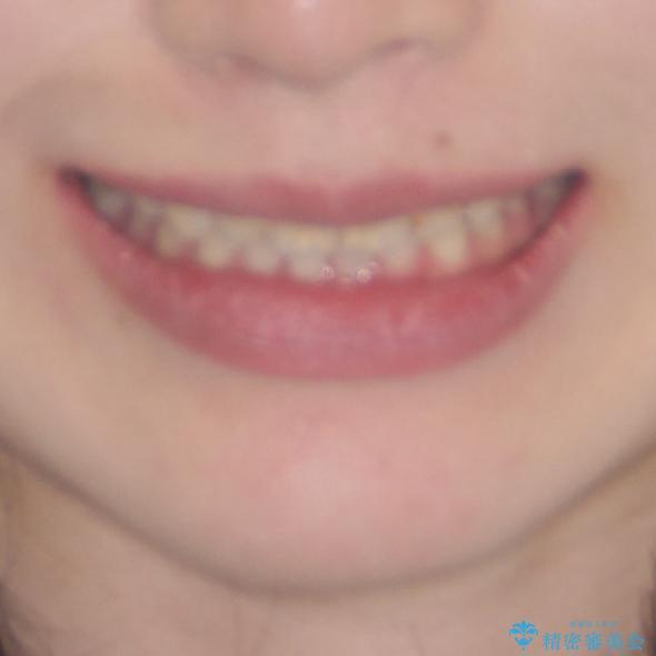 気になる前歯を美しく マウスピース矯正とセラミッククラウンの治療後(顔貌)