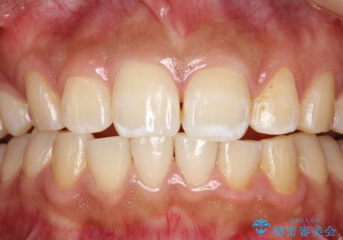 歯科医院で初めてのクリーニング PMTC30分コースの治療後