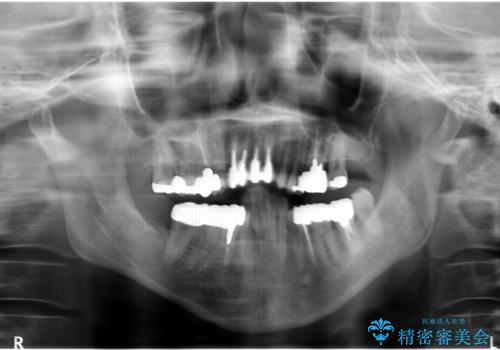 矯正を含む全顎治療の治療前