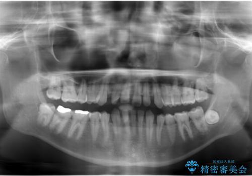 すきっ歯・出っ歯 コンプレックスの前歯を治したい 目立たない方法で セラミック治療は不可能な症例の治療前