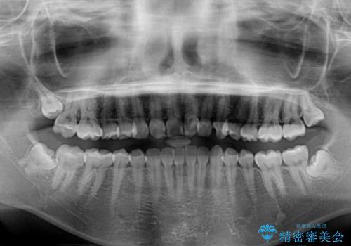 気になる前歯を美しく マウスピース矯正とセラミッククラウンの治療前