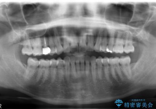 歯の高さがなく、しょっちゅう外れる 他院で治療途中だが病院を変えたいの治療後