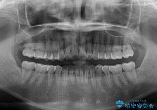 前歯のデコボコが気になる インビザラインによる矯正治療の治療後