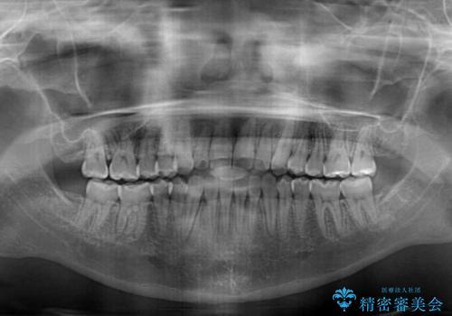 外科矯正は受けたくない 上顎骨拡大による妥協的な受け口治療の治療後