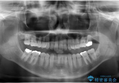 すきっ歯・出っ歯 コンプレックスの前歯を治したい 目立たない方法で セラミック治療は不可能な症例の治療中