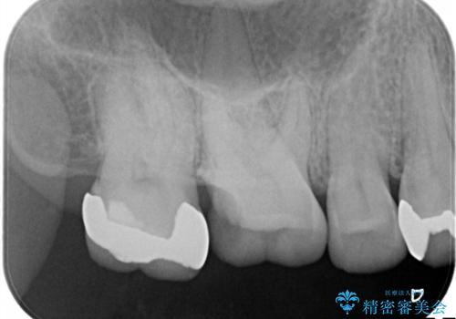 銀歯が外れてしまった ゴールドインレーによる補綴治療の治療前