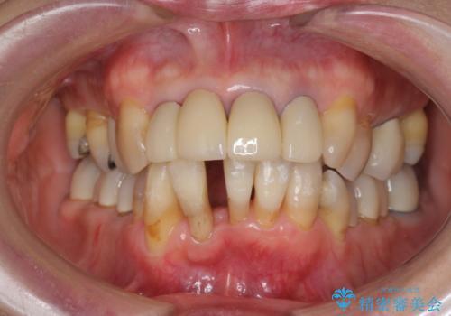 矯正を含む全顎治療の治療中