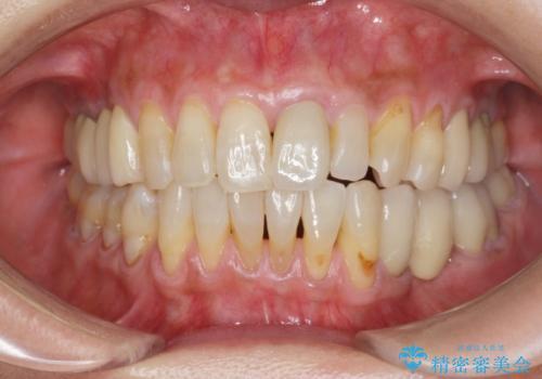 前歯の変色 セラミッククラウンによる審美回復の治療後