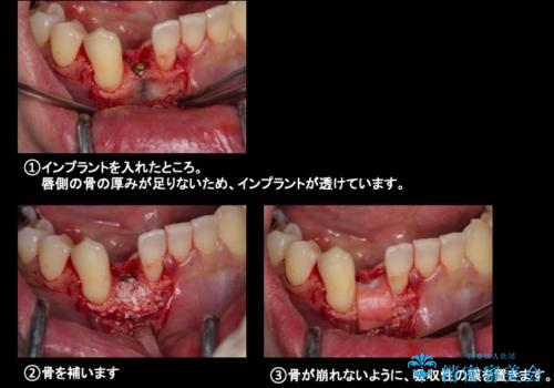 下の前歯のインプラント 生まれつき歯が少ないの治療中