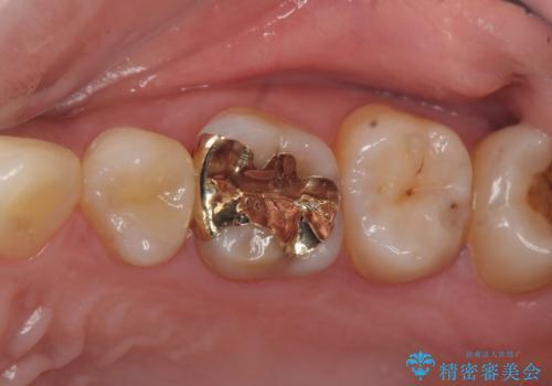 セラミックインレーとゴールドインレーの症例 治療後