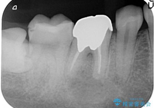 奥歯が痛い オールセラミッククラウンの治療前