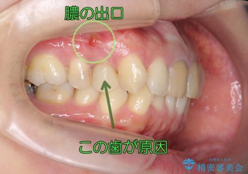 他院の根の治療で一向に治らない、さらに歯根を切ってもらったが良くならないの症例 治療前