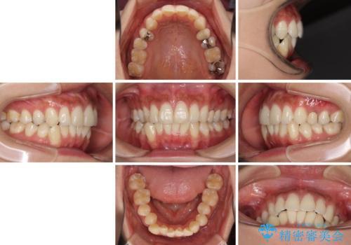 八重歯の再矯正 インビザラインでストレスなく矯正治療の治療前