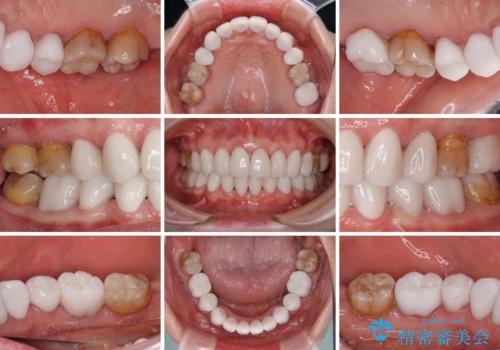出っ歯を改善した後に真っ白な歯に 矯正歯科治療と審美歯科治療の治療後