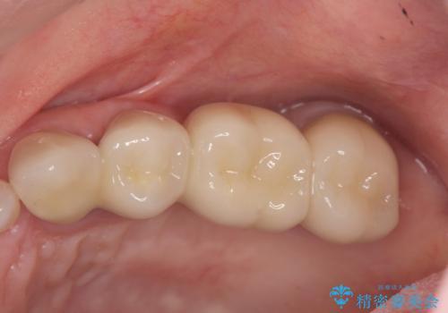 歯周病 ブリッジ補綴の治療後