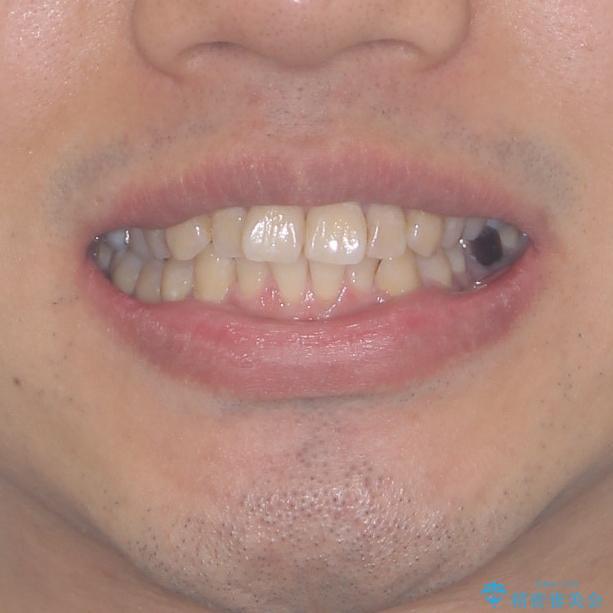 前歯のデコボコと下顎の八重歯 インビザラインによる矯正治療の治療前(顔貌)