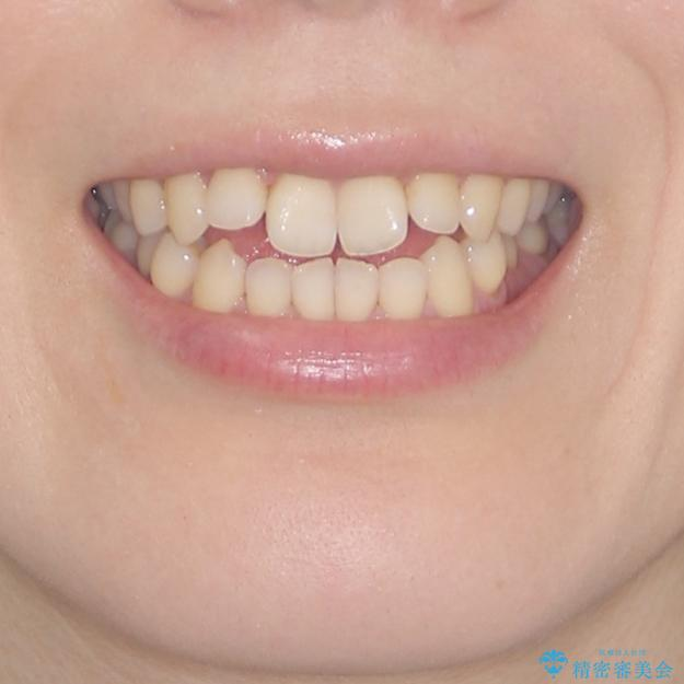 前歯の叢生とオープンバイト インビザラインでの矯正治療の治療前(顔貌)