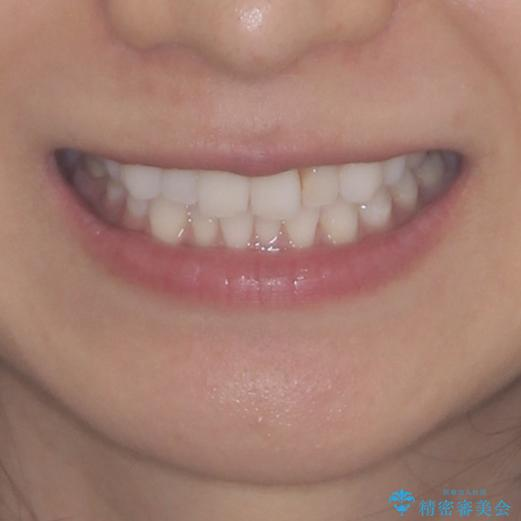 軽度の叢生をインビザライン・ライトで解消の治療前(顔貌)