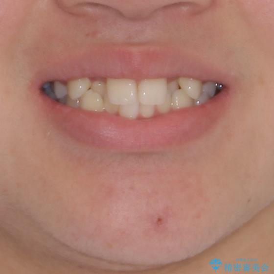 中学生のワイヤー矯正 クロスバイトを短期間で改善の治療前(顔貌)