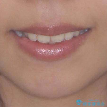八重歯の再矯正 インビザラインでストレスなく矯正治療の治療前(顔貌)