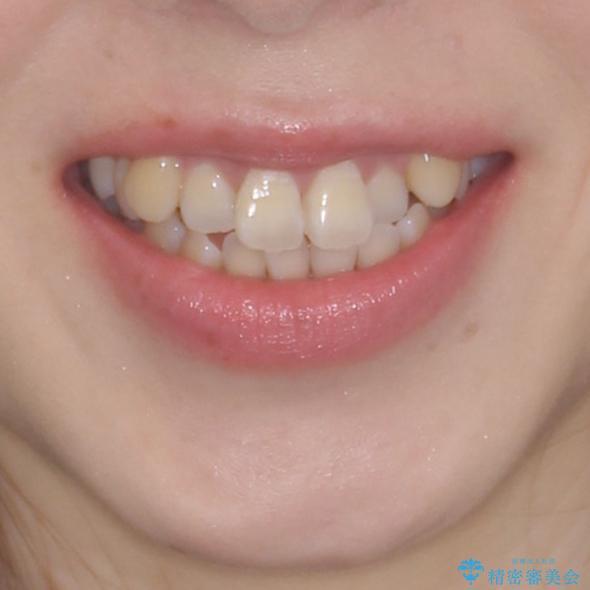 口元の突出感を改善 インビザラインによる非抜歯矯正の治療前(顔貌)