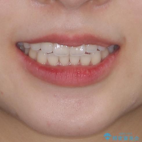 インビザライン・ライトにより後戻りの再矯正の治療前(顔貌)