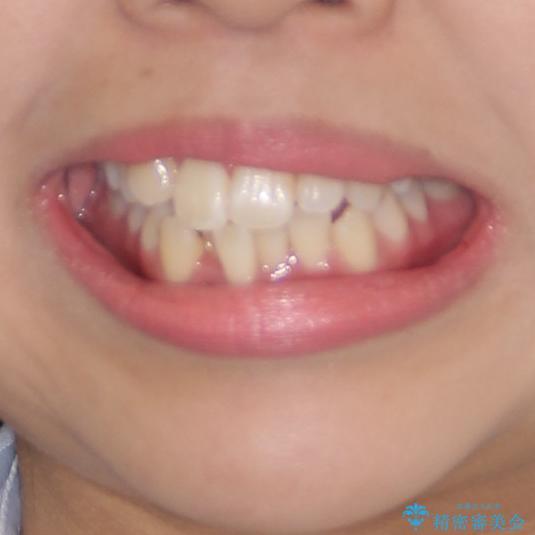 前歯の正中のズレを改善 目立たないワイヤー装置での抜歯矯正の治療前(顔貌)