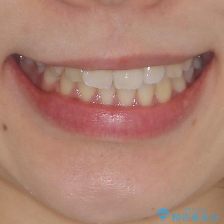 軽微な歯列不正をワイヤー矯正で整えるの治療前(顔貌)