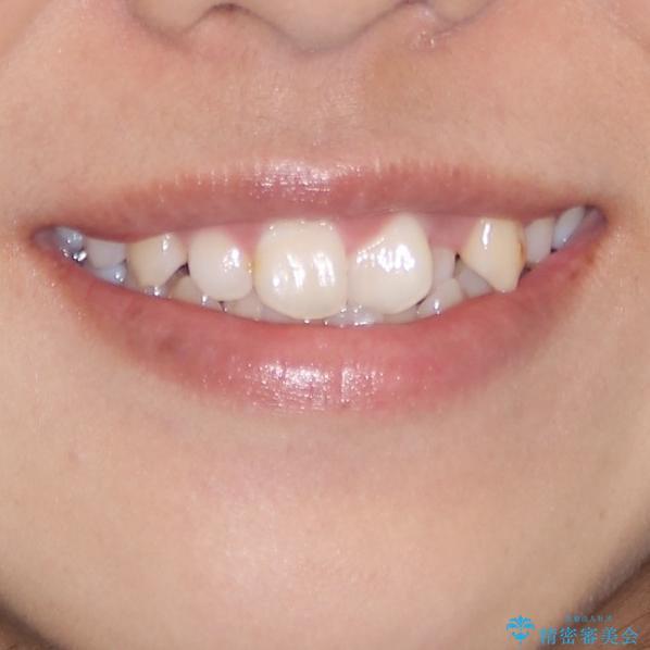 インビザラインが続けられない ワイヤー装置での矯正治療の治療前(顔貌)